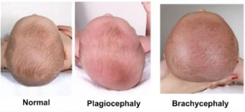 foto bayi baru lahir dengan kepala peyang