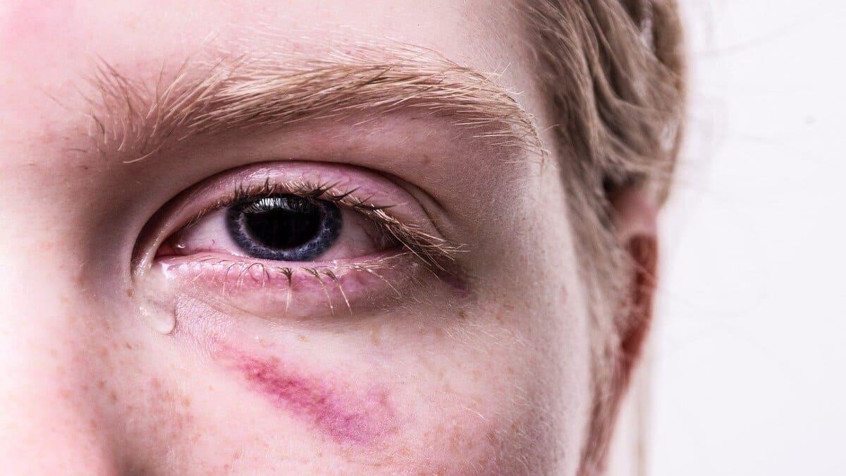 cara mengobati mata bengkak dan sakit saat berkedip