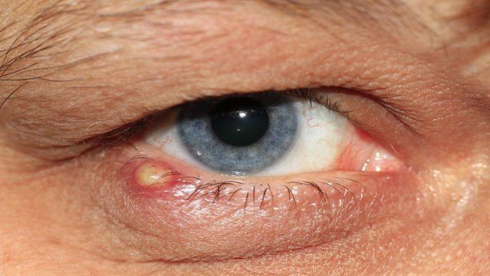 cara mengobati mata bengkak pada anak karena penyakit selulitis orbita
