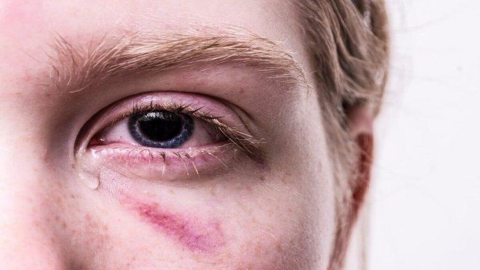 cara mengobati mata bengkak sebelah kiri