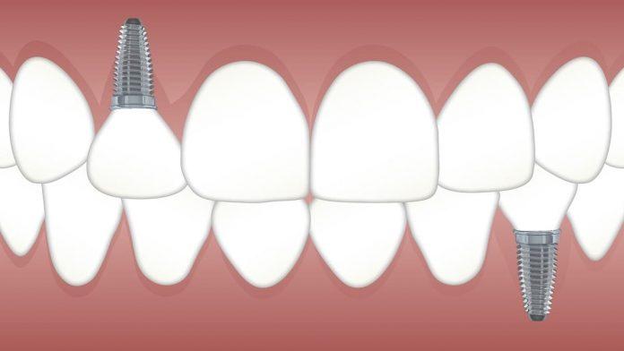 bagaimana cara menghilangkan sakit gigi dengan cepat alamiah